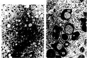 Депонирование и мобилизация гликогена в печени