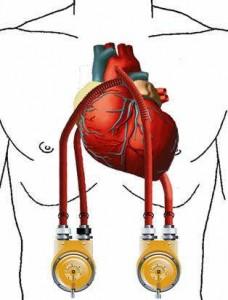 Изолированные органы